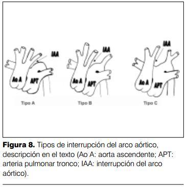 Ventana aortopulmonar asociada a interrupción del arco aórtico ...
