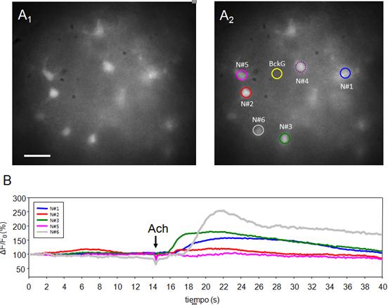 Modelo in vitro para el estudio del papel de la unión mesopontina en ...