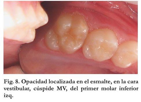 Hipomineralización molar-incisiva (MIH): una patología emergente