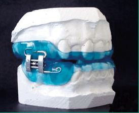 Use Of Pm Positioner Oral Appliance In The Treatment Of