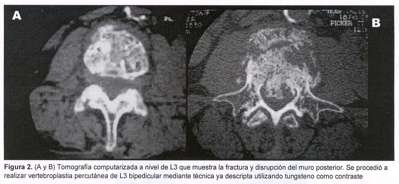 Vertebroplastia percutánea: Avances en el tratamiento del dolor raquídeo