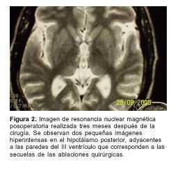 Kušingo sindromas. Simptomai, priežastys, eiga ir gydymas