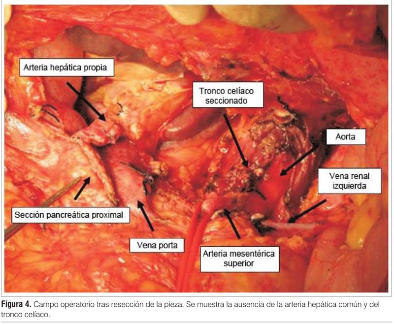Pancreatectomía córporo-caudal con resección del tronco celíaco por ...
