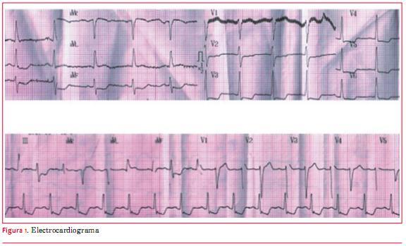 Rotura de músculo papilar anterolateral secundaria a oclusión de un ...